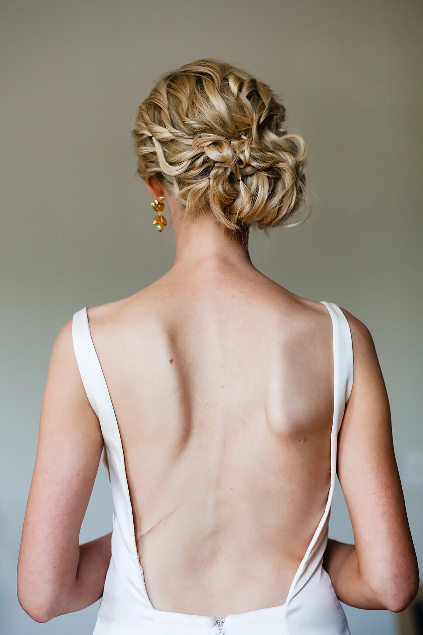 On Curves and Chronic Pain | My Scoliosis Story
